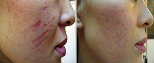 Dermapen Facial Rejuvenation