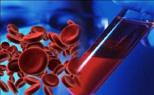 Platinum Laboratory blood test