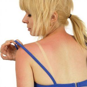 Hefty Health Price of Sunburns
